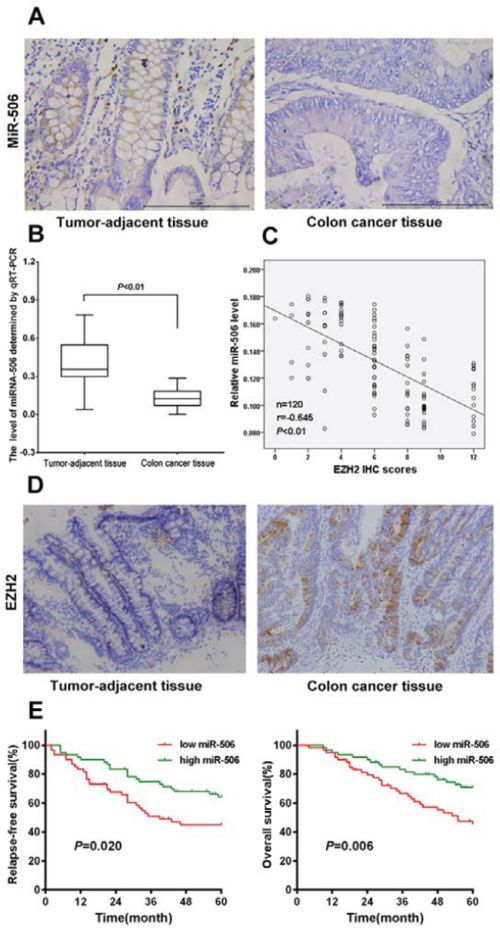 miRNA-506 expression was down-regulated and was inversely associated with EZH2 expression in colon cancer tissues, and high miR-506 expression predicted longer RFS and OS.