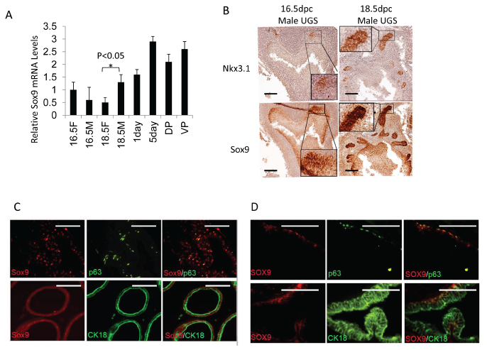 Sox9 and Nkx3.1 expression in UGS and adult prostate.