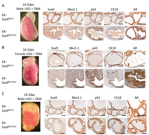 Sox9 is required for prostate differentiation in vivo.