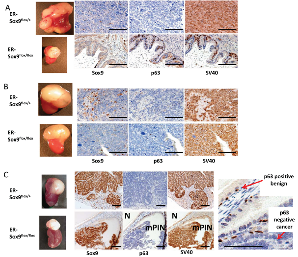Sox9 is essential for prostate cancer initiation.