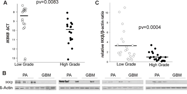 The level of IKBKB mRNA and its protein IKKβ in low and high grade gliomas.