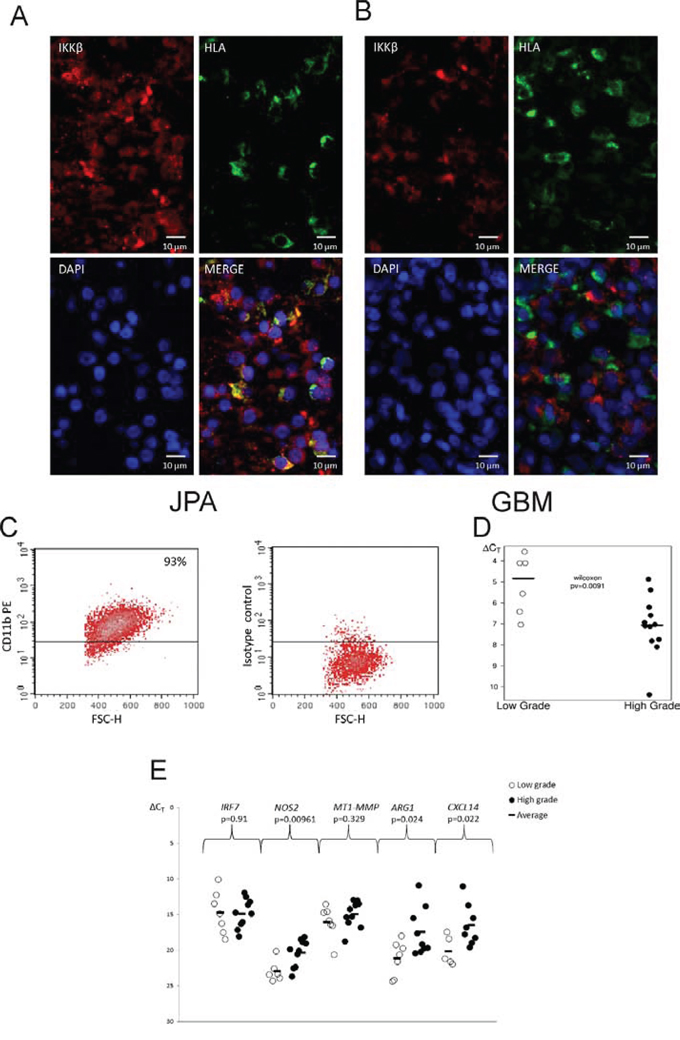 IKKβ expression in microglia/macrophages in low and high grade gliomas.