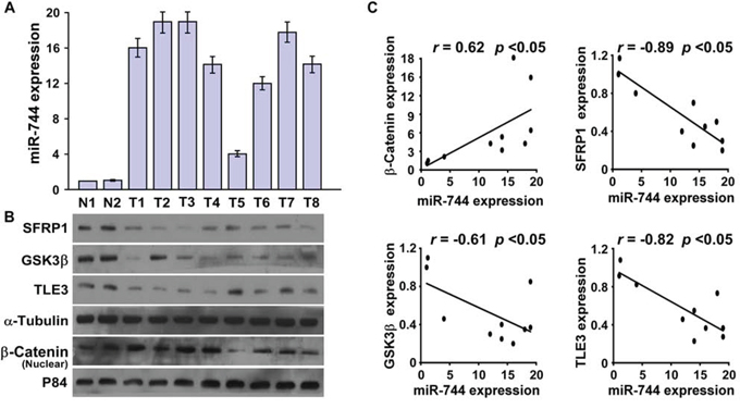 MiR-744 is clinically correlated with nuclear β-catenin and expression of its targets in pancreatic cancer.