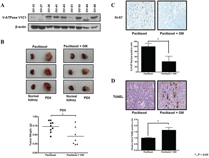 Effects of omeprazole on paclitaxel in a patient-derived tumor xenograft (PDX) model of platinum resistant ovarian clear cell carcinoma (ov-68).