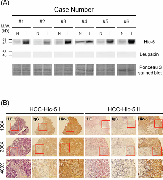 Detection of Hic-5 and Tyr31-phosphorylated paxillin in HCC tissues.