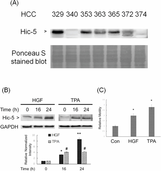 Constitutive and inducible expression of Hic-5 associated with motility of HCC.
