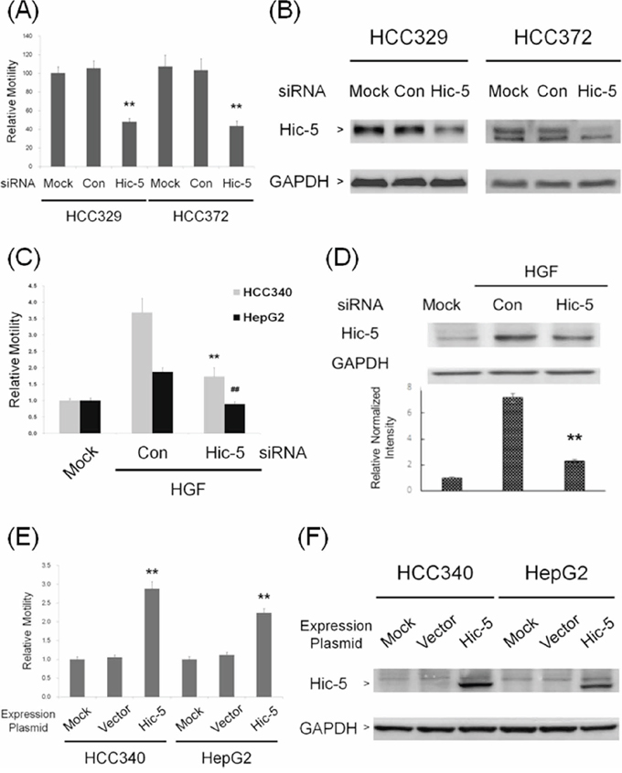 Hic-5 was required for constitutive and inducible HCC migration and sufficient for triggering HCC cell migration.