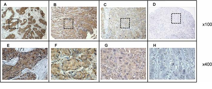 Immunohistochemical analysis of p62/IMP2 in four representative breast tumor tissues.
