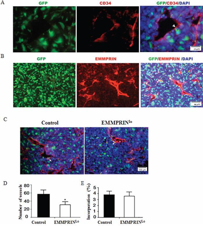 Down-regulation of EMMPRIN decreases tumor vascularization.