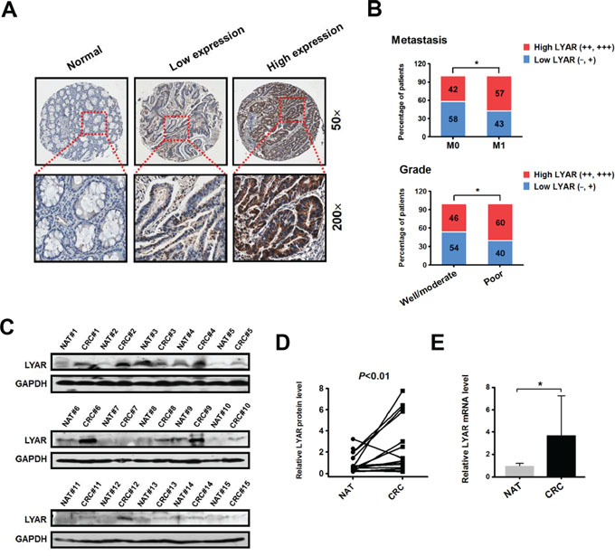 LYAR is highly expressed in human metastatic CRC tissues.