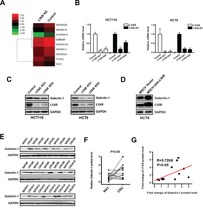 Identification of LGALS1 as a potential LYAR transcriptional target in colorectal cancer cells.
