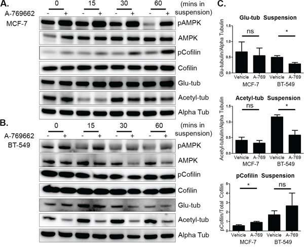 AMPK activation in suspended cells has differential effects on microtubule stability and cofilin activation.