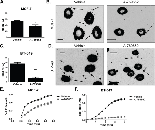 AMPK activation decreases microtentacles and tumor cell re-attachment.