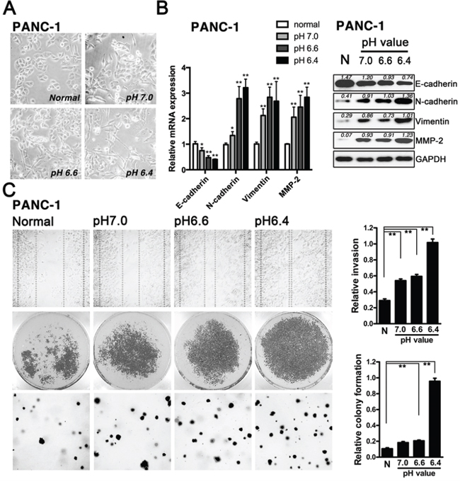 Acidity potentiated EMT in pancreatic cancer cells.