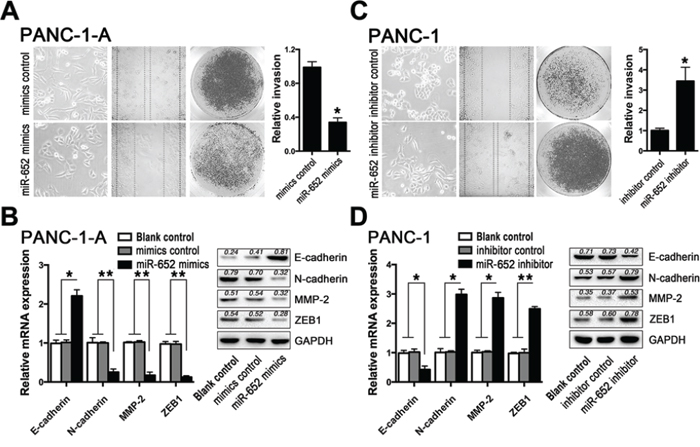 ZEB1 mediated miR-652 function in acidity-induced EMT.