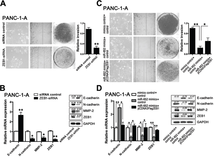 Downregulation of ZEB1 reversed the extracellular acidity-induced EMT in pancreatic cancer cells.