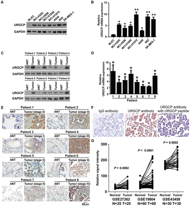 URGCP expression is elevated in NSCLC.