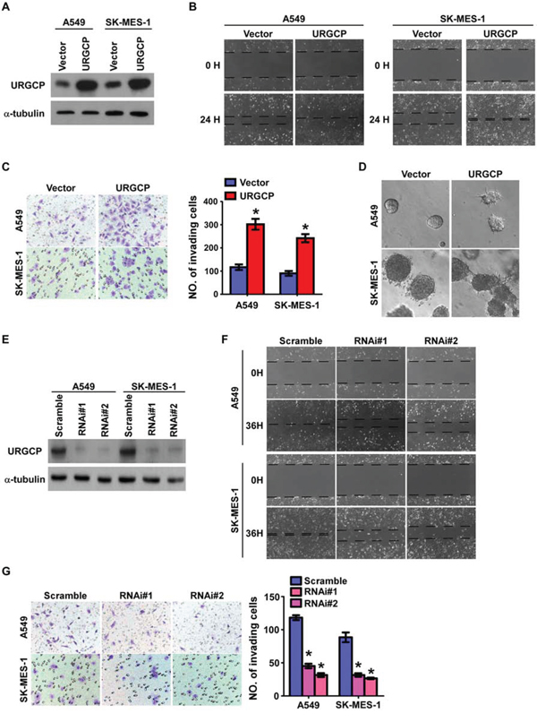 URGCP expression promotes the invasive and migratory abilities of NSCLC cells in vitro.