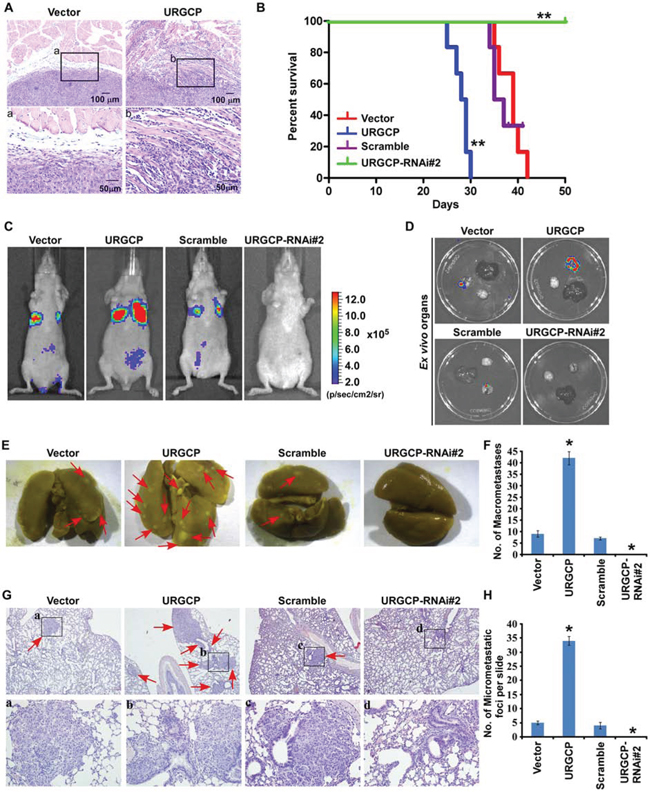 URGCP promotes invasion and metastasis of NSCLC cells in vivo.