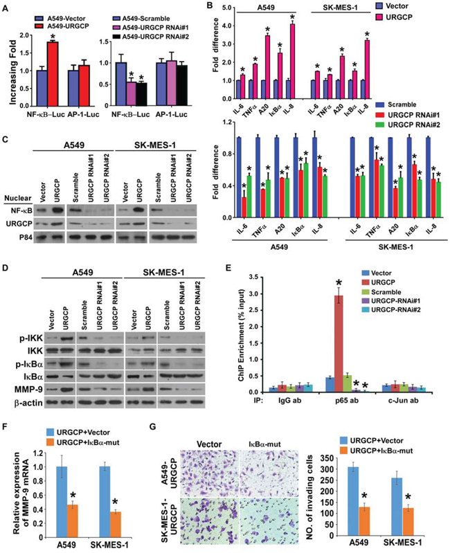 URGCP upregulates MMP-9 expression by activating NF-κB signaling.