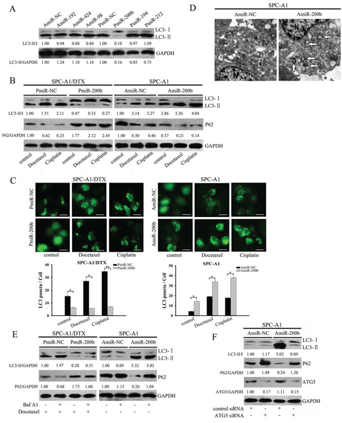 Forced expression of miR-200b blocks autophagy in SPC-A1/DTX cells.