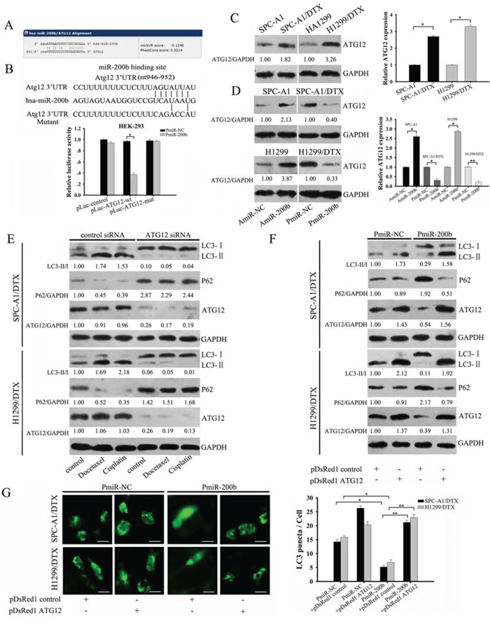 MiR-200b inhibits autophagy by directly targeting ATG12.