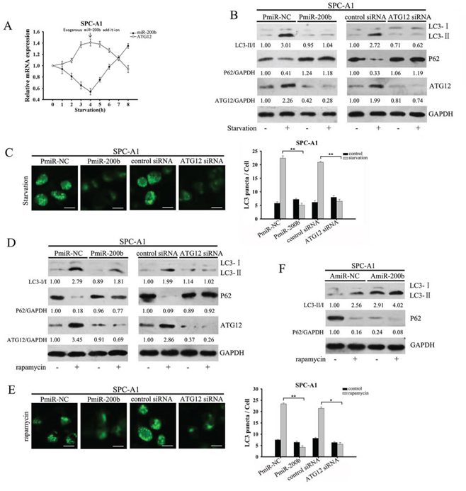 MiR-200b inhibits starvation and rapamycin-induced autophagy in SPC-A1 cells.