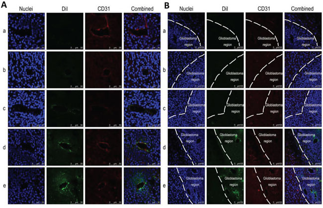 In vivo co-localization or targeting binding with neovasculatures and with glioblastoma cells in brain glioblastoma-bearing mice.