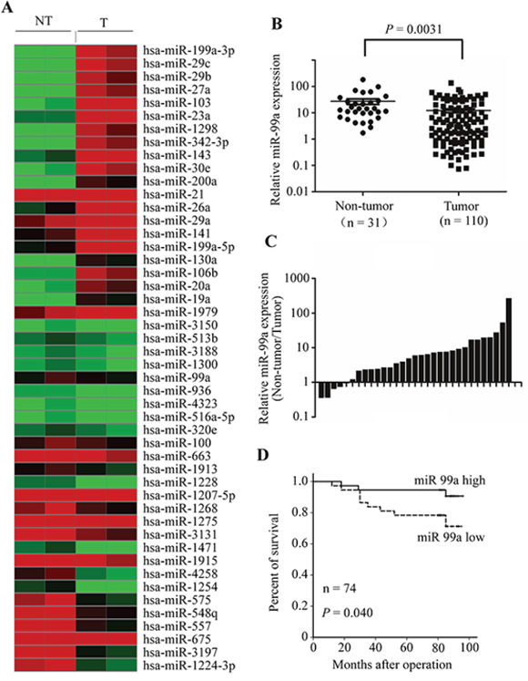 miR-99a expression is reduced in breast tumors and predicts better overall survival in breast cancer patients.