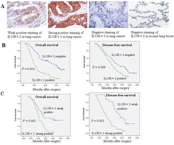 IL13Rα2 overexpression is associated with poor prognosis in resected lung cancer patients.