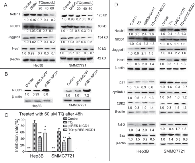 TQ inhibits HCC cells growth by inducing cell cycle arrest and cell apoptosis via the inactivation of Notch pathway genes.