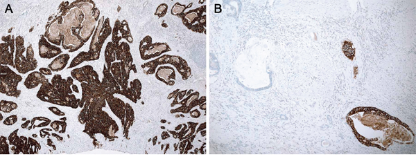 Heterogeneity of HER2 IHC staining in a resection specimen.