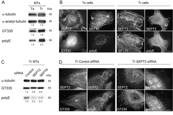 Septins are required to allow long chain polyglutamylation of microtubules in Tr cells.