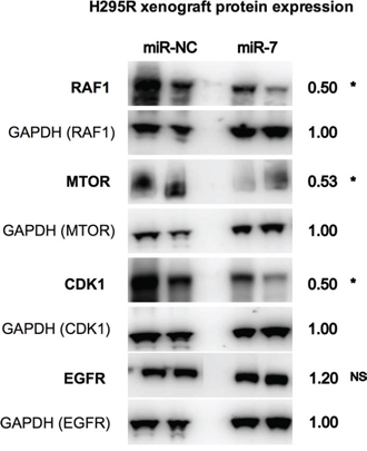Reduced protein expression of RAF1, MTOR and CDK1 in mouse xenografts following miR-7 therapy.