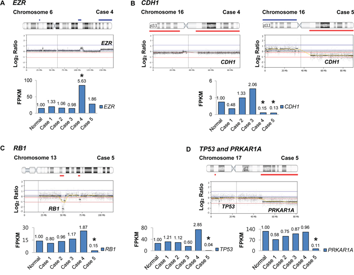 The loci maps of cancer-related genes with copy number alterations and correlated gene expressions.