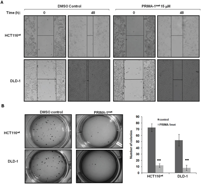 PRIMA-1met suppressed CRC cell migration and colony formation.