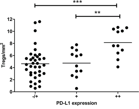 Association between high Treg- and high PD-L1+ myeloid cell rates in cervical lymph nodes.