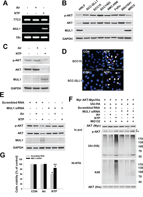 NTP induces MUL1-mediated AKT ubiquitination and degradation.