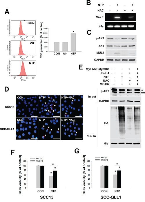 ROS plays a role in NTP-induced AKT stability and MUL1 expression.