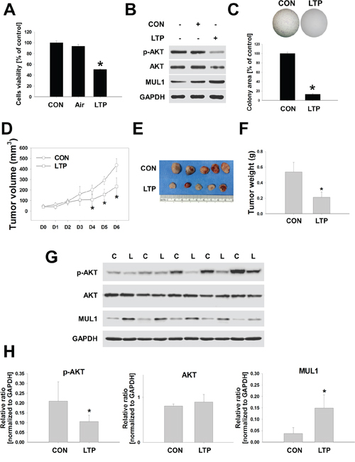 LTP inhibites tumor growth in a syngeneic mouse model.