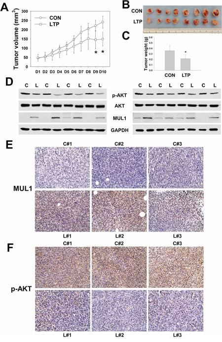 LTP shows anti-cancer effect in xenograft in vivo model.