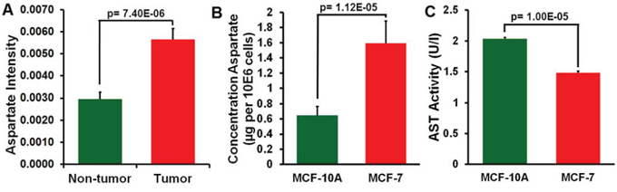 Analysis of aspartate in breast cancer tissue and adjacent non-tumor tissue and in MCF-7 and MCF-10A cells.