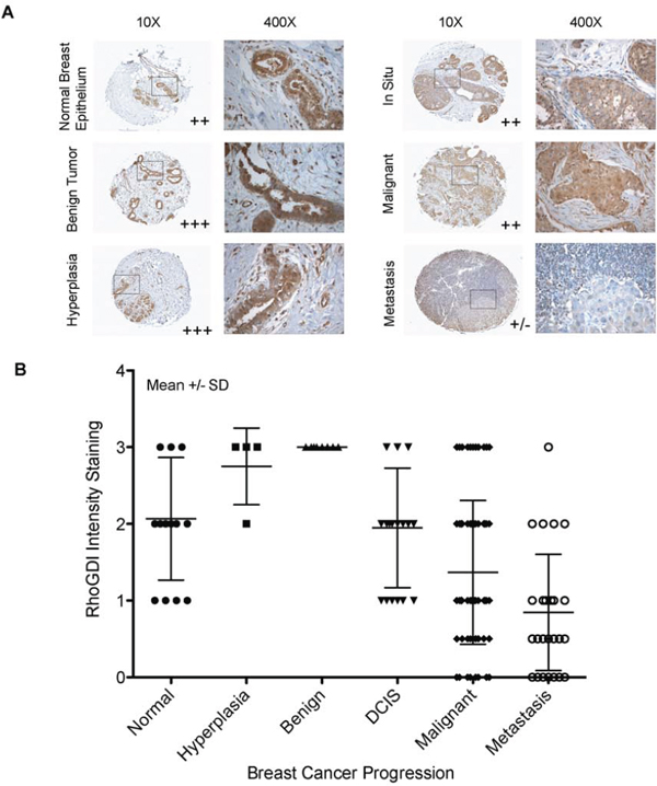 RhoGDI protein expression as a function of human breast cancer progression.