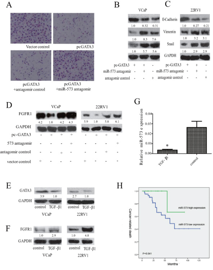 Association of miR-573 expression with FGFR1 and GATA3 in PCa.