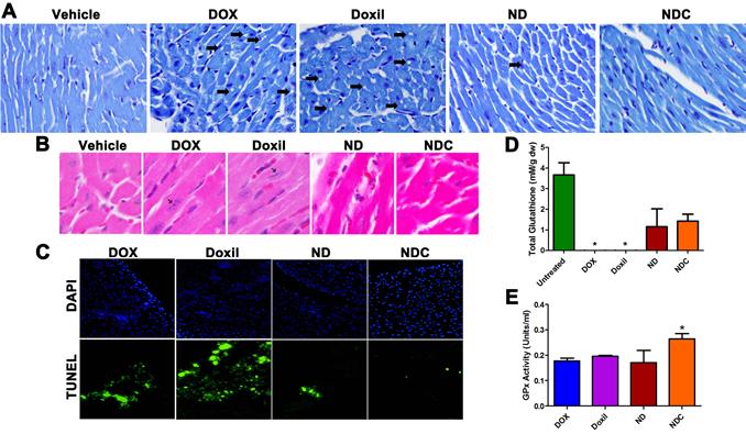 Doxorubicin formulation NDC has no observable cardiotoxicity.