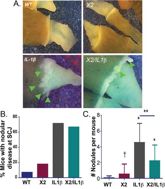 K14-Cdx2/L2-IL-1β TG mice metaplastic nodule numbers and nodule volume are reduced compared to L2-IL-1β TG mice.