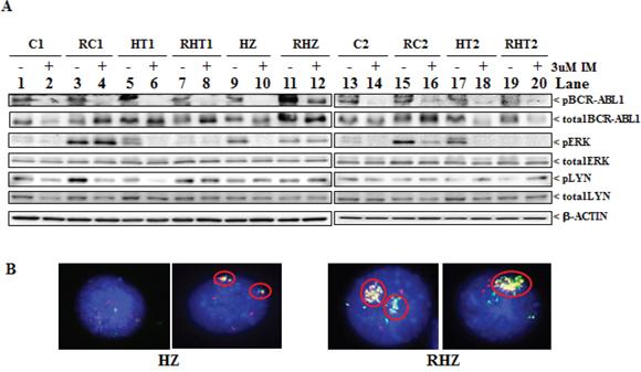 Characteristics of imatinib-resistant clones.