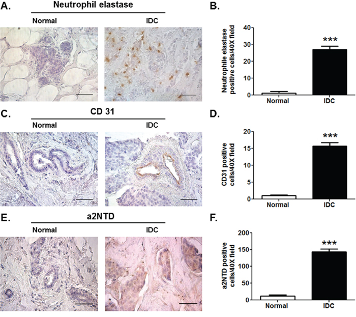 High levels of a2NTD in breast cancer in relationship with TAN and angiogenesis.