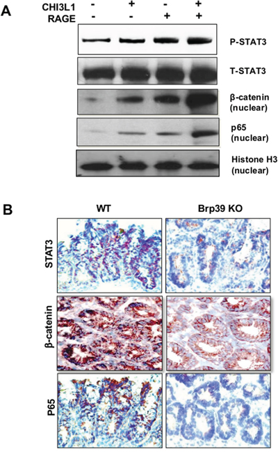 CHI3L1-RAGE ligation synergistically activates STAT3, β-catenin and p65.
