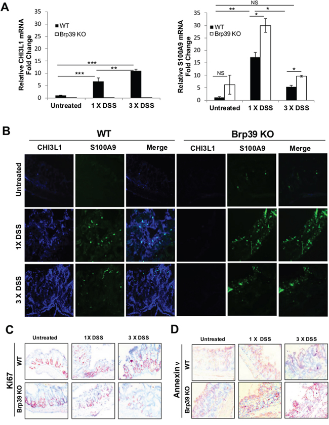 Co-expression levels progression of CHI3L1 and S100A9 from steady state to acute and chronic colitis phase correlates with colonic proliferation and apoptosis.